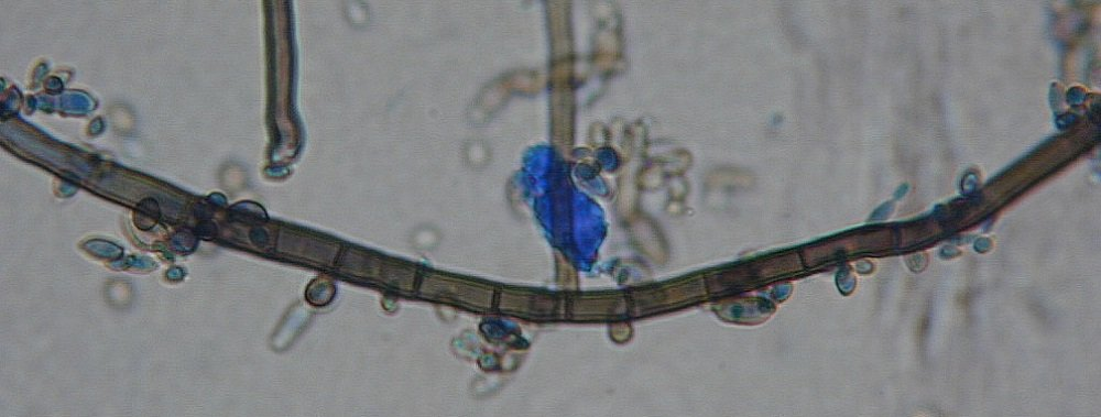 Aureobasidium